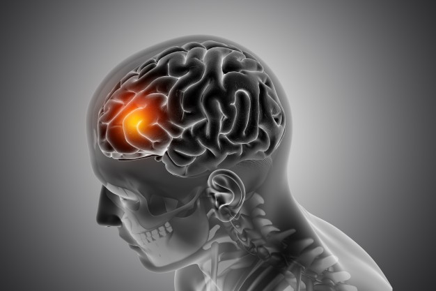 What are the Complications after Brain Tumor Surgery?